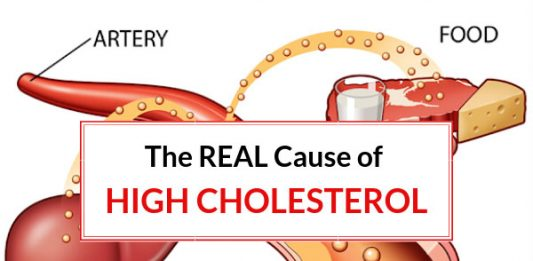 The REAL Cause of High Cholesterol