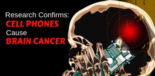 Research Confirms – Cell Phones Cause Brain Cancer