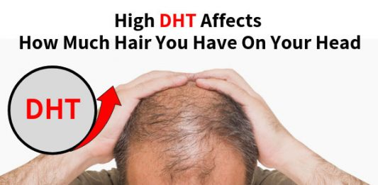 High DHT Affects How Much Hair You Have On Your Head