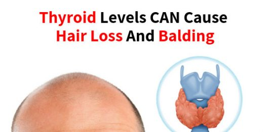 Thyroid levels CAN cause hair loss and balding