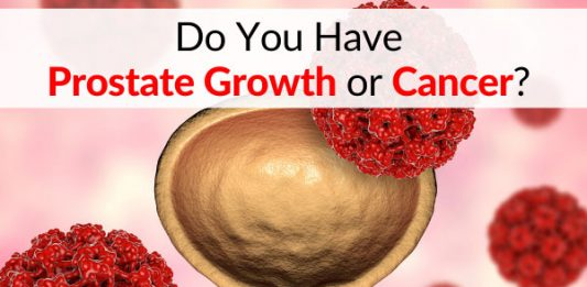 Do You Have Prostate Growth or Cancer? Read this Article