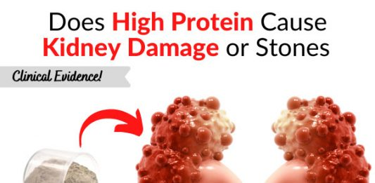 Does High Protein Cause Kidney Damage or Stones - Clinical Evidence