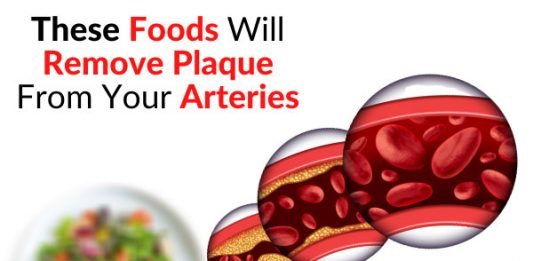 These Foods Will Remove Plaque From Your Arteries