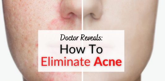 Doctor Reveals How To Eliminate Acne, Zits & Pimples From Face & Body