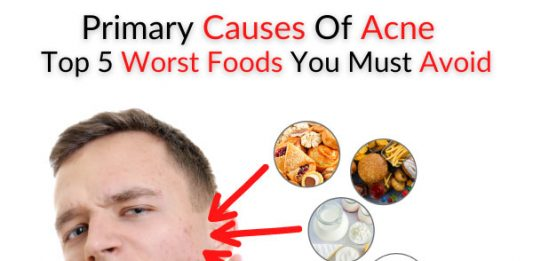 Primary Causes Of Acne - Top 5 Worst Foods You Must Avoid